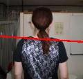 肩の高さの左右差