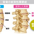 背骨の変形性関節症